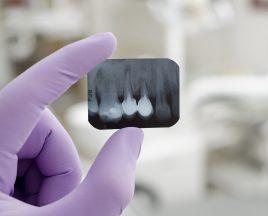Dr.ssa Ortodontista Chiara Fagioli